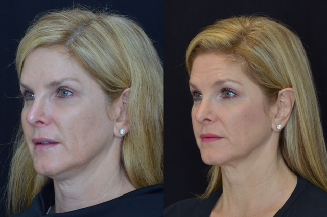 Kybella, Thermage and Volbella review  Do they really work?