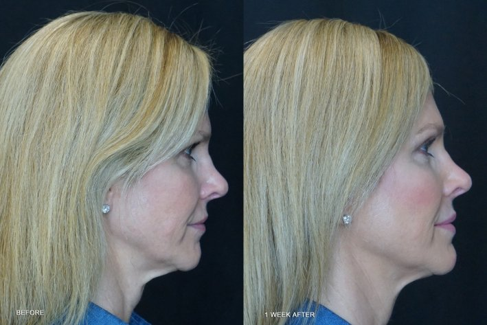 Before and after pictures of Tanya Foster with Restylane Kysse