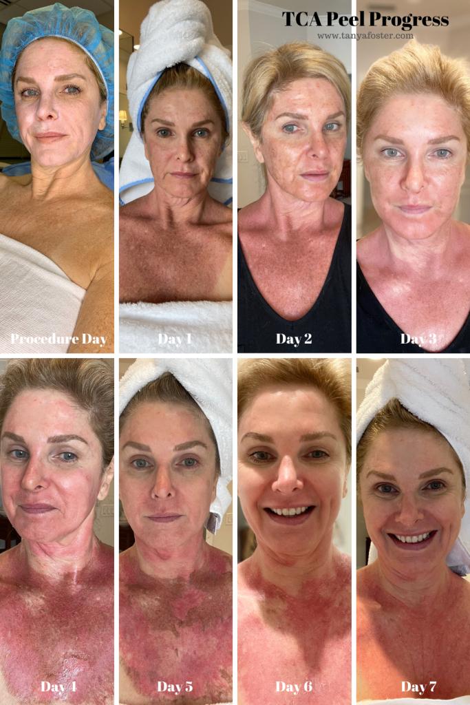 Procedure and healing progression - TCA Peel